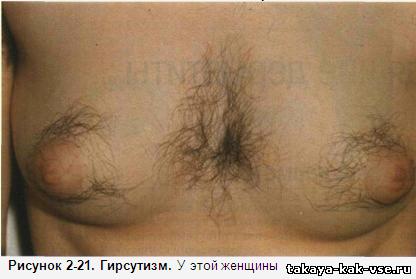 Избыточный рост волос на теле и лице у женщин причины лечение